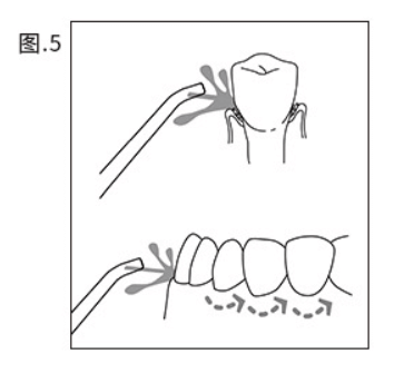 Correctly align the position of the teeth