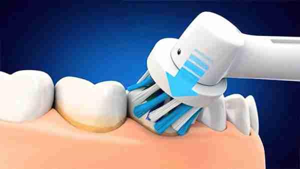 Rotating-toothbrush